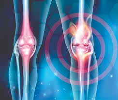 Osteoporosis tips mencegah
