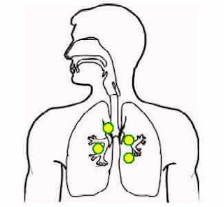 akciğer şarbonu