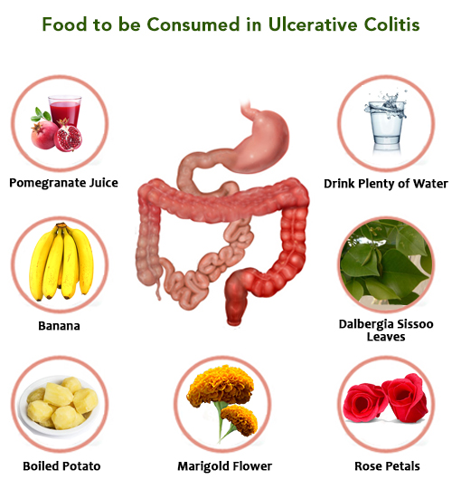 recommended foods, ulcerative colitis, inflammatory bowel disease, crohns disease