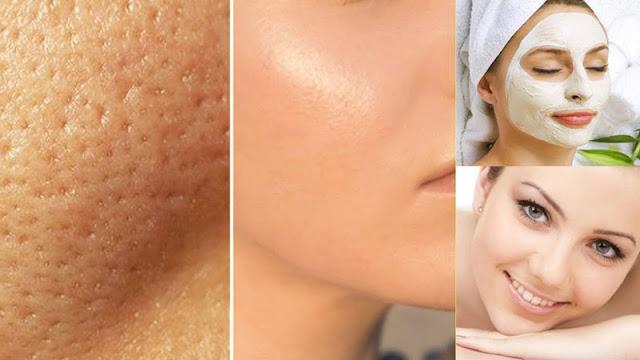 Como eliminar os poros abertos da pele? Essa é uma pergunta muito frequente pois com os poros abertos a possibilidade de entrar bactérias e surgir acnes é muito grande, geralmente os furinhos na pele aparecem mais em peles oleosas na parte da testa, nariz e queixo. Cuidados necessários devem ser tomados para que os poros fiquem fechados e sejam só abertos para limpeza profunda da pele. Para amenizar os poros abertos você pode usar algumas técnicas fáceis e que podem ser feitas no dia a dia. Assim que acordar, lave bem o rosto com produtos para o seu tipo de pele e aplique água micelar para uma limpeza dos poros, pois não podemos fechar os poros se eles estiverem sujos. Depois de limpos, você pode aplicar um pouco de água gelada ou cubos de gelo sobre a sua pele do rosto, dessa forma os poros vão ser fechador de forma rápida. Esse tipo de técnica é ideal para quando você estiver com pressa e não poder fazer mais procedimentos.