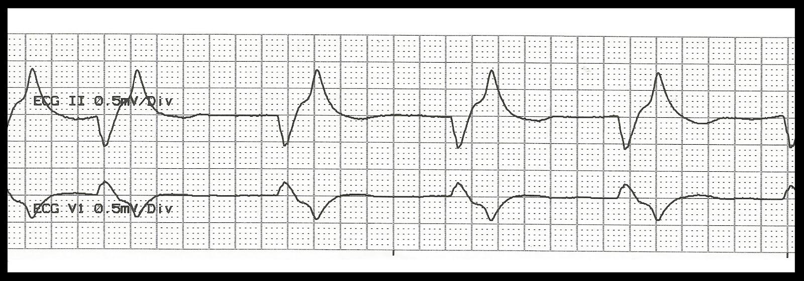 Float Nurse: Basic EKG Rhythm Test 13