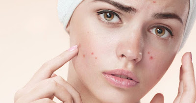 Inilah Acne Treatment dan Skincare untuk Kulit Berjerawat