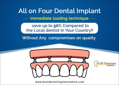 Immediate loading dental implants in Chennai