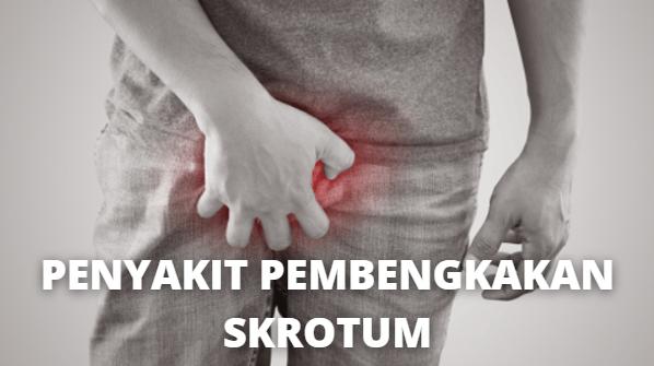 """Penyakit Pembengkakan Skrotum : Pengertian, Tanda dan Gejala, Penyebab, Faktor Risiko Pada Tubuh Manusia Pengertian Pembengkakan Skrotum Pembengkakan skrotum adalah pembesaran kantong skrotum. Pembengkakan skrotum bisa muncul karena cedera atau kondisi medis tertentu.   Penyakit ini mungkin disebabkan oleh penumpukan cairan, peradangan, atau pertumbuhan abnormal di dalam skrotum. Skrotum adalah kantong di sekitar testis, yang memproduksi, menyimpan, dan menyalurkan sperma dan hormon pria.  Tanda dan Gejala Pembengkakan Skrotum Selain pembesaran kantong skrotum, ada tembahan gejala lainnya. Gejala yang di alami tergantung penyebabnya. Gejala umum adalah benjolan di testis dan rasa sakit di testis atau skrotum.  Penyebab Pembengkakan Skrotum Pembengkakan skrotum dapat muncul karena berbagai alasan. Penyebabnya adalah : Cedera Penyakit jantung bawaan Kanker testis Testis terpuntir Epididymitis Hernia Orchitis Varicocele Operasi di daerah alat kelamin  Faktor Risiko Pembengkakan Skrotum Faktor risiko dari Pembengkakan Skrotum adalah sebagai berikut : Rawan terkena infeksi menular seksual Seks tidak aman Menderita hernia inguinal Menderita orchitis   Nah itu dia bahasan dari penyakit pembengkakan skrotum, melalui bahasan di atas bisa diketahui mengenai pengertian, tanda dan gejala, penyebab, faktor risiko pembengkakan skrotum pada tubuh manusia. Mungkin hanya itu yang bisa disampaikan di dalam artikel ini, mohon maaf bila terjadi kesalahan di dalam penulisan, dan terimakasih telah membaca artikel ini.""""God Bless and Protect Us"""""""