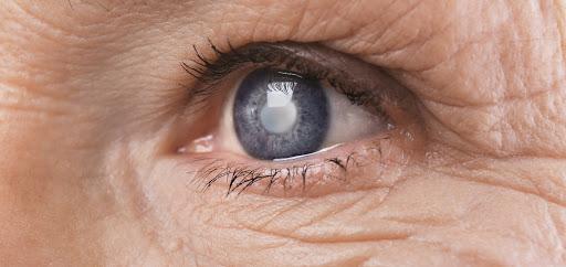 Glaucoma: conheça a doença que pode levar à cegueira