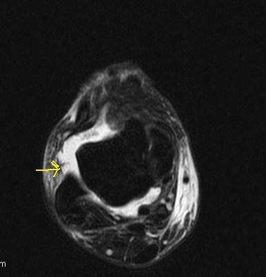 Anterior talofibular ligament (ATFL) Disruption-MRI ...
