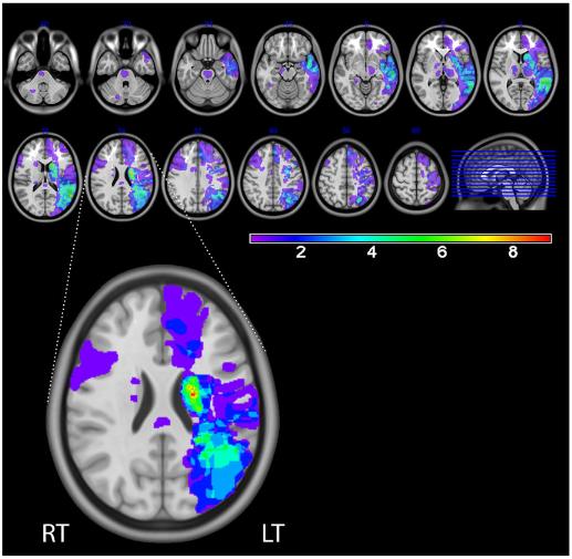図:失語症の脳部位