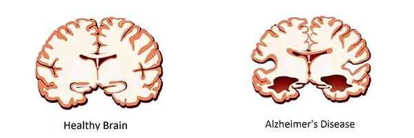 Early Sign of Alzheimers