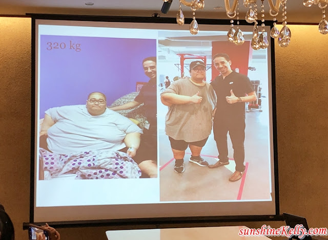 7 Facts About Obesity And Bariatic Surgery, Obesity, Bariatic Surgery, Health Awareness Talk, Obesity is a Disease, Dr. Mustafa Mohammed, Bariatric Surgeon, iHEAL Medical Centre Kuala Lumpur, KPJ Ampang Puteri, Health