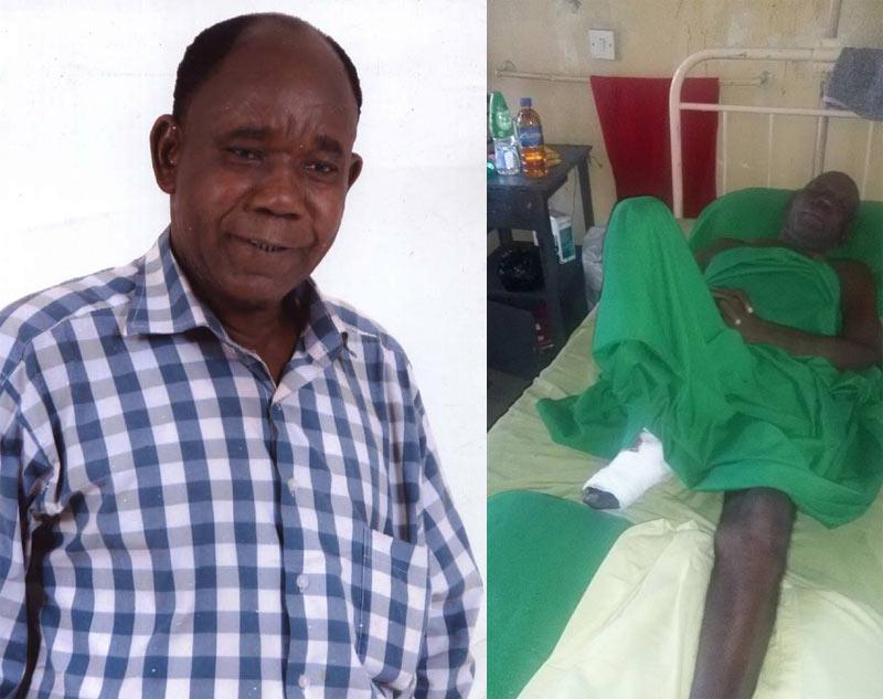 """The Village Headmaster"" actor Tunde Alabi down with illness, set to lose leg"