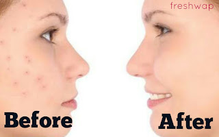 How To Remove Pimple and Dark Spot On Face Naturally At Home