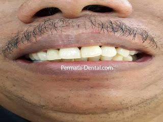pasang gigi palsu permanen denpasar | pasang gigi palsu permanen jimbaran | pasang gigi palsu permanen nusadua| pasang gigi palsu permanen kute| pasang gigi palsu permanen badung| | Gambar gigi yang akan memakai gigi crown | pasang gigi palsu crown cepat | pasang gigi palsu crown bagus | pasang gigi palsu crown murah | pasang gigi palsu crown aman | pasang gigi palsu crown geraham | pasang gigi palsu crown mudah| pasang gigi palsu crown permanen |harga  pasang gigi palsu crown | pasang gigi palsu crown di ahli gigi| pasang gigi palsu crown depan| pasang crown pada gigi| trend foto gambar gigi palsu crown | pasang gigi palsu crown promo | pasang gigi Crown 2017 | cara pasang gigi crown | gambar sebelum dan sesudah pasang gigi palsu crown