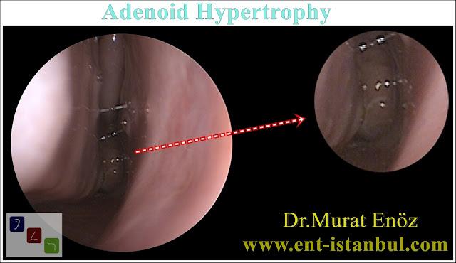 Adenoid Hypertrophy - Diagnosis