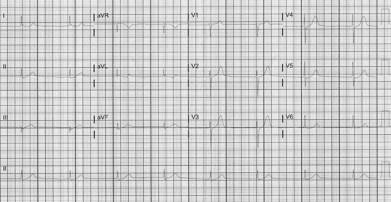 Dr  Smith's ECG Blog: Middle Aged Male with Burning Chest
