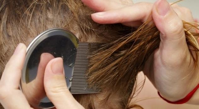 8 Cara Natural Menghilangkan Kutu Rambut Dengan Cepat