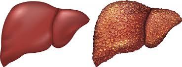 كيف تقى نفسك وعائلتك من مرض التليف الكبدى ؟