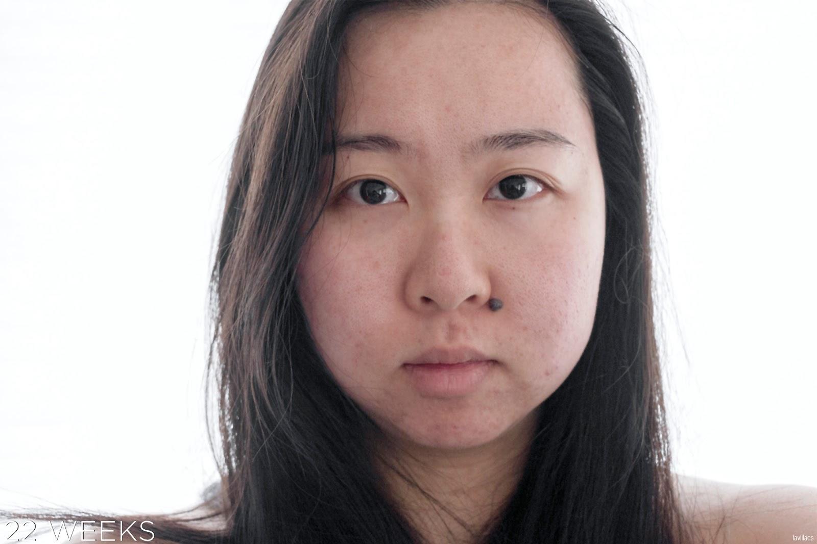 tria Hair Removal Laser Facial Hair 22 Weeks, 5 months