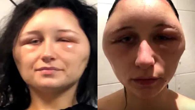 Una mujer de 19 años tiene una reacción alérgica casi mortal al tinte para el cabello
