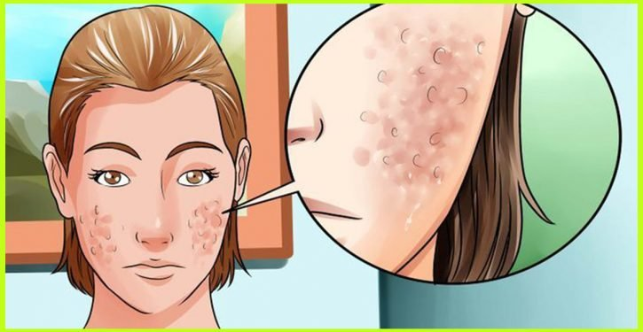 This Tip Of My Grandmother To Get Rid Of Acne And Pimples