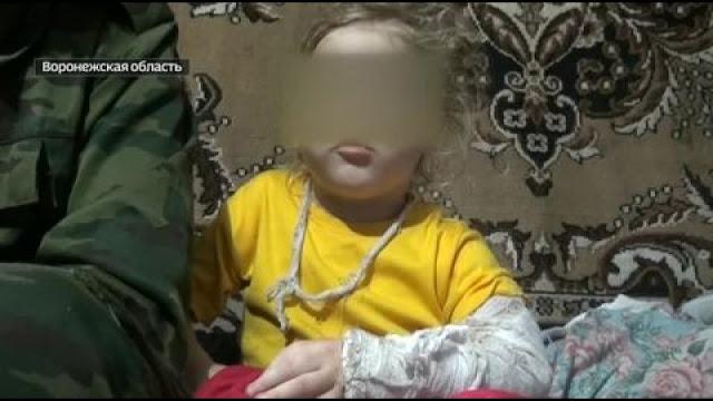 Мать сломала нос и чуть не вырвала 5-летней дочери язык за съеденный без спроса маргарин
