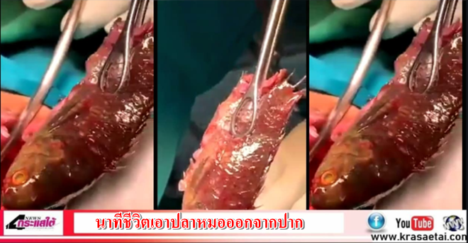 คลิป |กระบี่-เผยนาทีชีวิตผ่าตัดเอาปลาหมอออกจากปาก