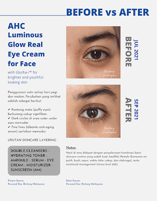 Before-After-AHC-luminous-glow-real-eye-cream