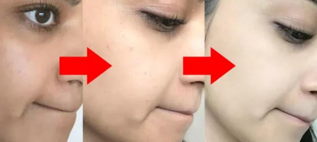 how to get fairer skin_ichhori.com