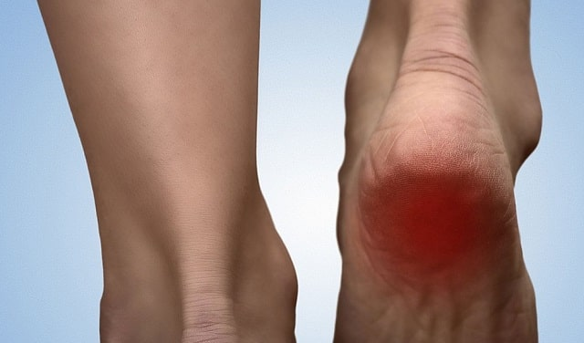 heel pain management ankle injury