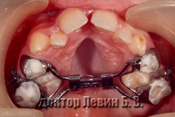 Устанавка брекета при лечении сустава челюсти кого ставят в очередь на операцию по эндопротезированию сустава