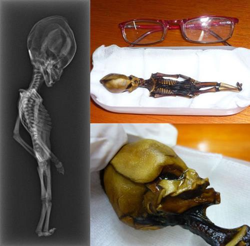 Điểm danh 10 xác ướp bí ẩn trước khoa học