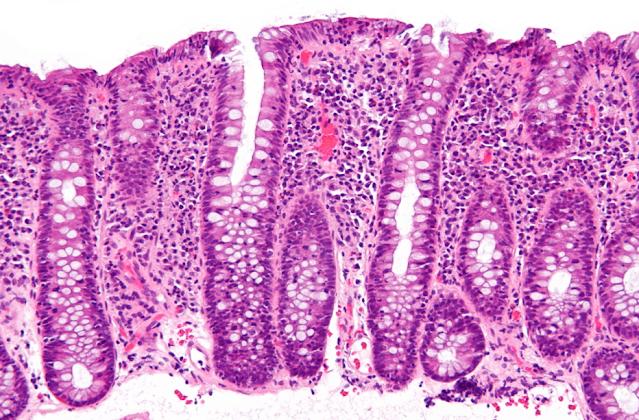 الإسهال المزمن: قد يكون لديك التهاب القولون المجهري