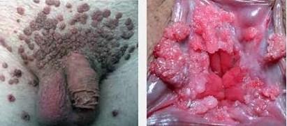 Cara Mencegah Virus Hepatitis B