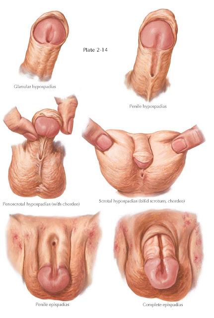 periurethral glands