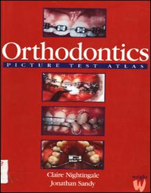 Orthodontics: Picture Test Atlas