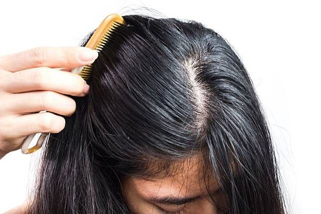 3 Penyebab Utama Rambut menjadi Lepek
