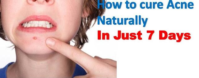 Как вылечить прыщи естественным путем