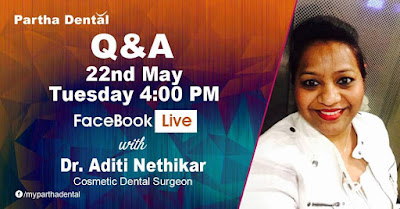 Partha Dental Facebook Live with Dr. Aditi Nethikar, Cosmetic Dental Surgeon on 22nd May at 04:00 PM.