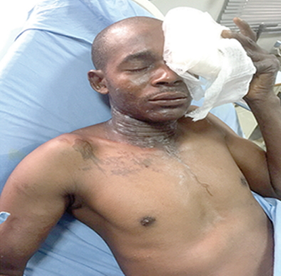 area boys pour acid on jtf officer