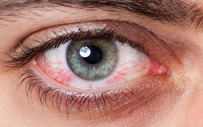 Göz Tansiyonu (Glakom) Nedir? Göz Tansiyonu Belirtileri Nelerdir ? Göz Tansiyonu Tedavi Yöntemleri Nelerdir ? Glakom Nedir ? Oküler Hipertansiyon Nedir ? Oküler Hipertansiyon Nasıl Tedavi Edilir ?