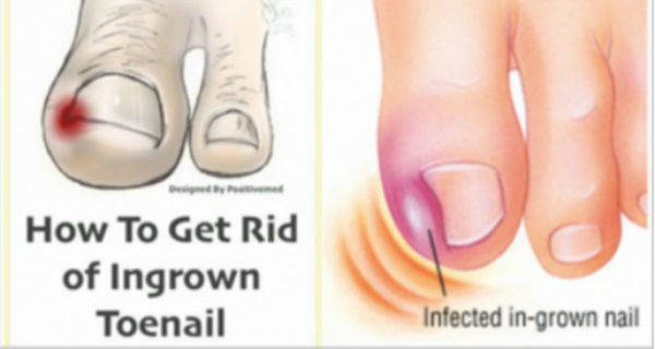 Remedy for Ingrown Toenails