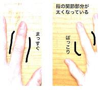指の側副靭帯損傷と掌側板損傷から1年後