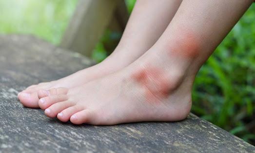 allergia-sto-tsimpima-koynoypioy-ta-anisyxitika-symptomata-eikones