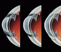 Tipos de lentillas o lentes de contacto (ventajas e inconvenientes)