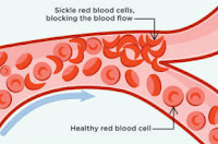 Sickle Cell Anemia symptoms.how cure Sickle Cell Anemia