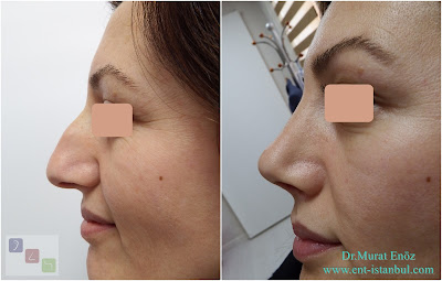 Female Nose Job in Istanbul, Turkey, Rhinoplasty in Women Turkey