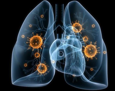 How Long Is Walking Pneumonia Contagious