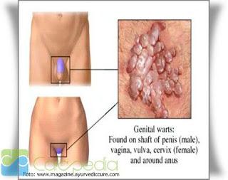 cara mengatasi kutil di kelamin pria wanita anjuran dokter tanpa operasi