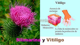 Silimarina-y-Vitiligo