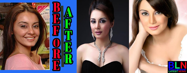 MINISSHA LAMBA Bollywood Actresses Before and After Plastic Surgery