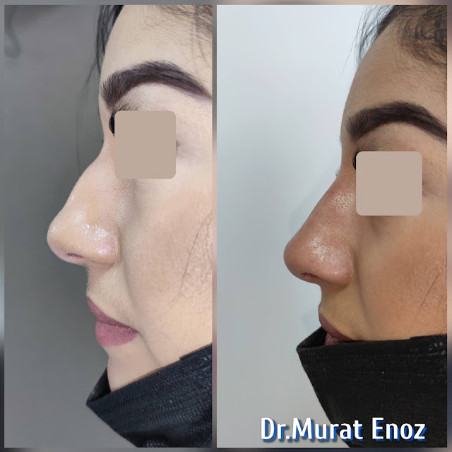 Cost of non-surgical rhinoplasty in Istanbul,Nose filler injection cost in Turkey,Cost of non-surgical nose job in Istanbul,Cost of non surgical nose job with filler in Istanbul,